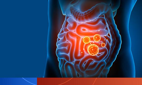 Ingestão alimentar na infância e microbiota intestinal